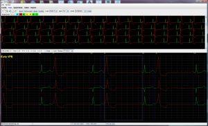 Holter LX – Basic