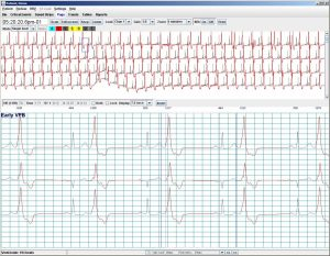 Holter LX – Pro